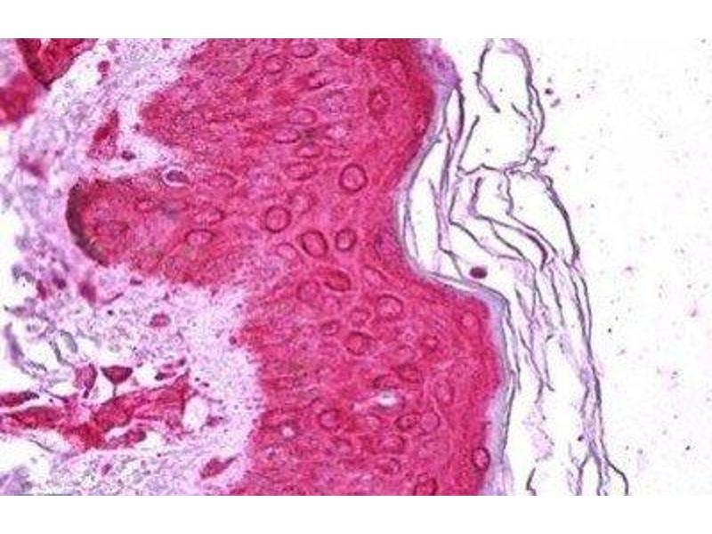Immunohistochemistry (Paraffin-embedded Sections) (IHC (p)) image for anti-MAP Kinase Interacting serine/threonine Kinase 1 (MKNK1) antibody (ABIN4335142)