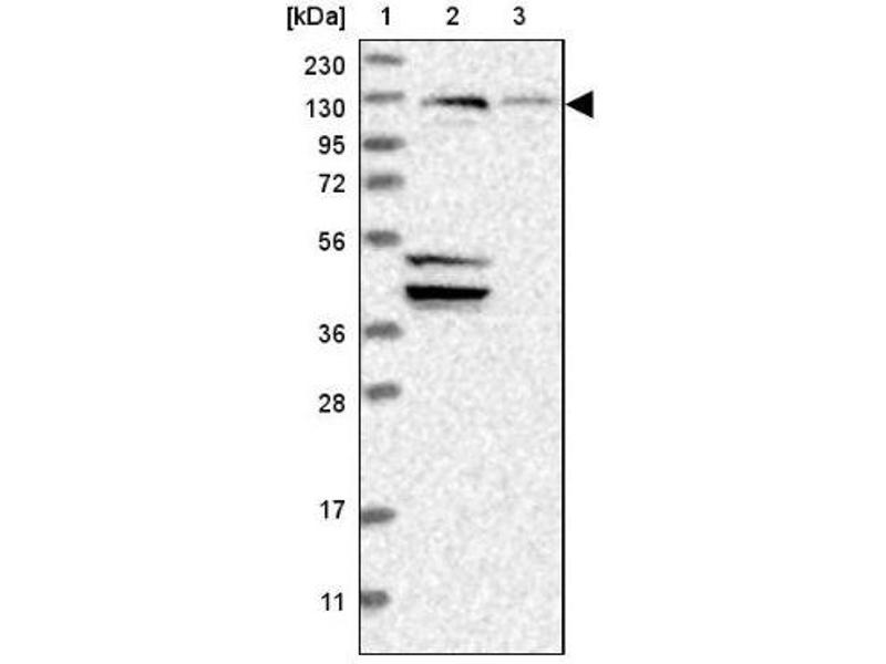 Western Blotting (WB) image for anti-Exocyst Complex Component 4 (EXOC4) antibody (ABIN4352426)
