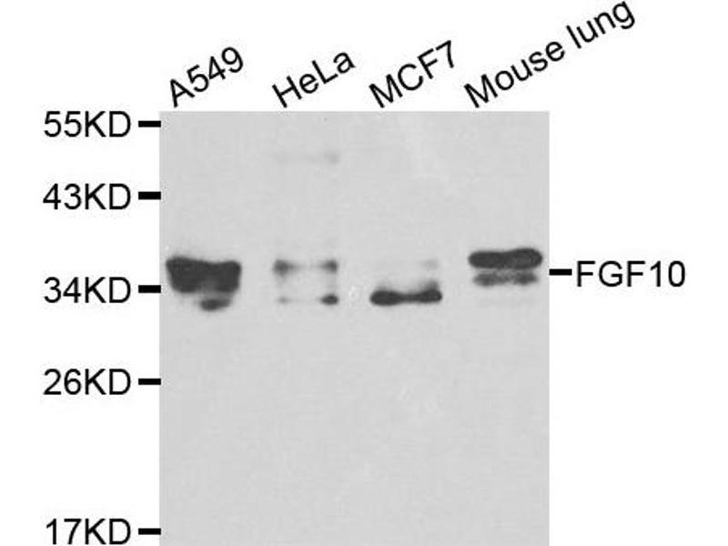 Western Blotting (WB) image for anti-FGF10 antibody (Fibroblast Growth Factor 10) (ABIN1872682)