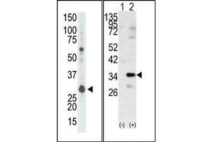 image for anti-Guanine Nucleotide Binding Protein (G Protein), beta Polypeptide 2-Like 1 (GNB2L1) (N-Term) antibody (ABIN360524)
