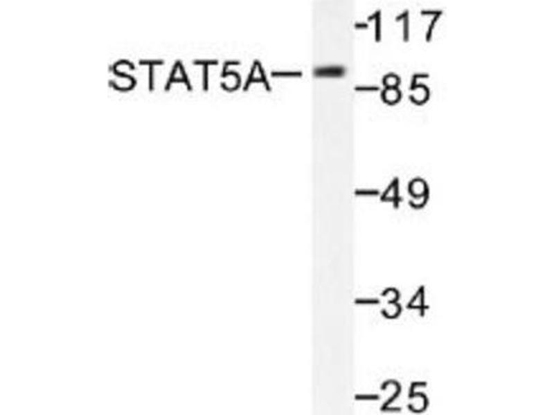 Western Blotting (WB) image for anti-Signal Transducer and Activator of Transcription 5A (STAT5A) antibody (ABIN407838)