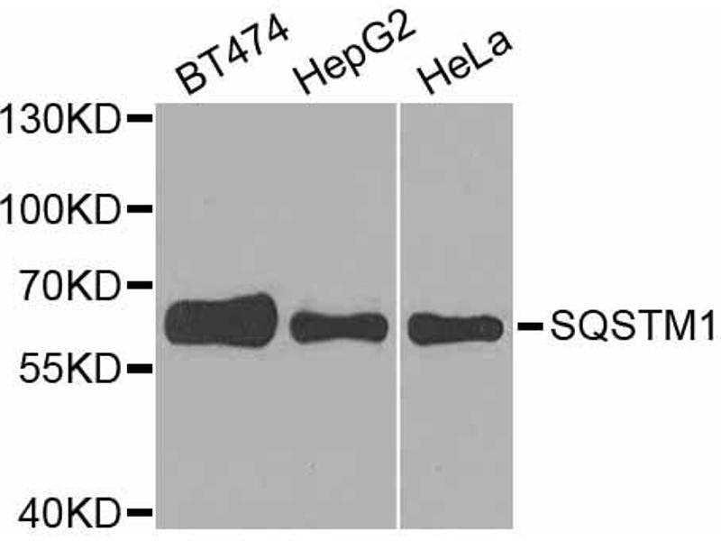 Image no. 3 for anti-Sequestosome 1 (SQSTM1) antibody (ABIN6567156)