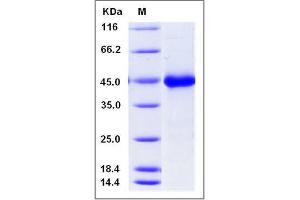 Image no. 1 for WNT Inhibitory Factor 1 (WIF1) (AA 1-379) protein (His tag) (ABIN2008476)