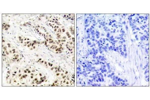 Immunohistochemical analysis of paraffin-embedded human breast carcinoma tissue using CDC2 (Ab-15) antibody (E021236).
