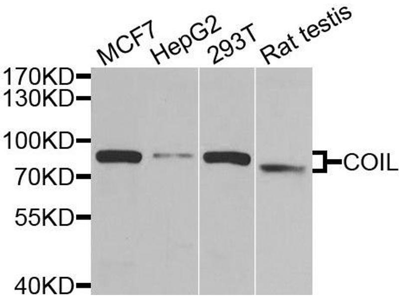 Image no. 1 for anti-Coilin (COIL) antibody (ABIN2561921)