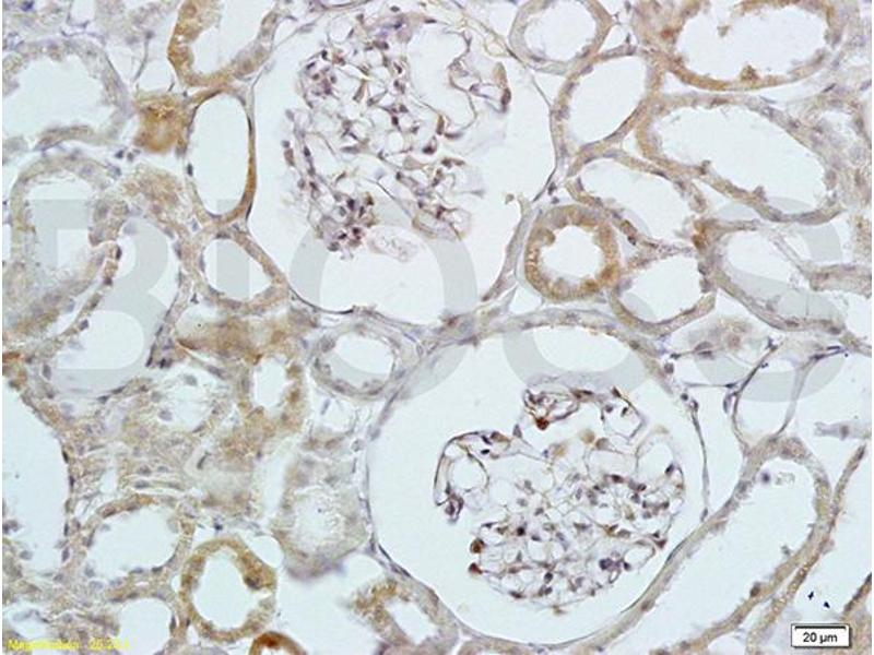 Immunohistochemistry (IHC) image for anti-HBEGF antibody (Heparin-Binding EGF-Like Growth Factor) (AA 90-140) (ABIN701050)
