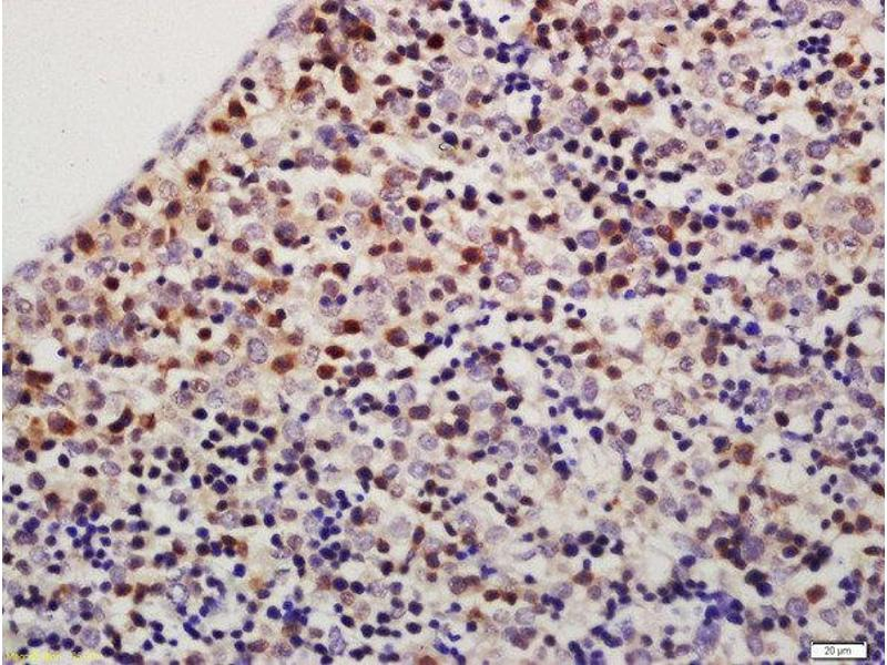 Immunohistochemistry (Paraffin-embedded Sections) (IHC (p)) image for anti-Thioredoxin Domain Containing 9 (TXNDC9) antibody (ABIN1387753)