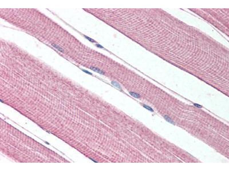 Immunohistochemistry (IHC) image for anti-Prokineticin Receptor 1 (PROKR1) (N-Term) antibody (ABIN1049243)