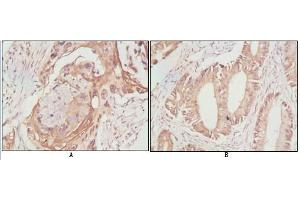 Immunohistochemistry (IHC) image for anti-DDX4 antibody (DEAD Box Protein 4) (ABIN1106960)