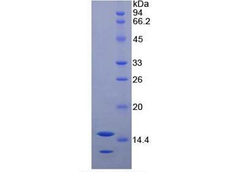 Neurotrophin 3 (NTF3) ELISA Kit