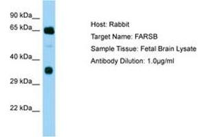 Image no. 1 for anti-Phenylalanyl-tRNA Synthetase, beta Subunit (FARSB) (AA 162-211) antibody (ABIN6750198)