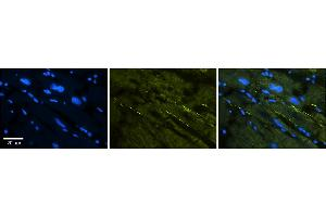 Image no. 1 for anti-Sodium Channel, Voltage-Gated, Type V, alpha Subunit (SCN5A) (C-Term) antibody (ABIN2776089)