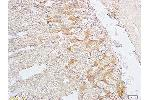Immunohistochemistry (Paraffin-embedded Sections) (IHC (p)) image for anti-Sarcoglycan, beta (43kDa Dystrophin-Associated Glycoprotein) (SGCB) (AA 170-220) antibody (ABIN738051)