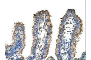 Image no. 1 for anti-rho-Related BTB Domain Containing 1 (RHOBTB1) (C-Term) antibody (ABIN6736347)