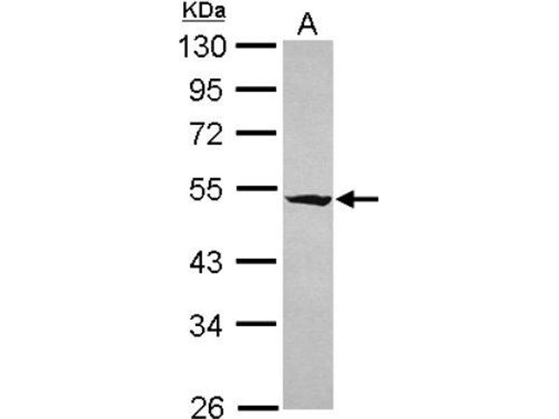 Western Blotting (WB) image for anti-RasGEF Domain Family, Member 1A (RASGEF1A) (Center) antibody (ABIN4349412)