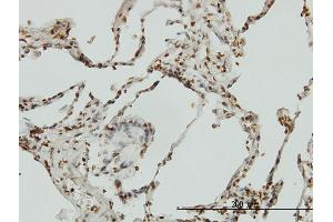 Image no. 1 for anti-BCL2-Interacting Killer (Apoptosis-Inducing) (BIK) (AA 37-136) antibody (ABIN560061)