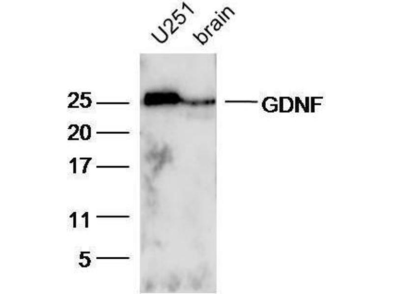 Western Blotting (WB) image for anti-Glial Cell Line Derived Neurotrophic Factor (GDNF) (AA 166-211) antibody (ABIN736536)