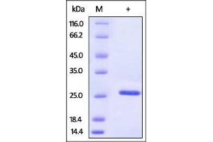 Image no. 1 for Superoxide Dismutase 2, Mitochondrial (SOD2) (AA 25-222) protein (His tag) (ABIN2444219)