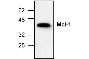 Western Blotting (WB) image for anti-MCL-1 antibody (Induced Myeloid Leukemia Cell Differentiation Protein Mcl-1) (ABIN285856)