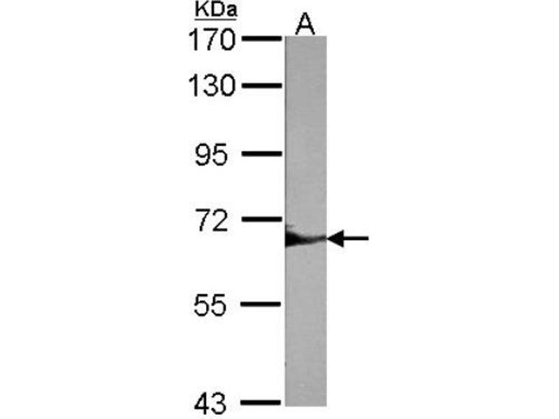 Western Blotting (WB) image for anti-PTPN6 antibody (Protein-tyrosine Phosphatase 1C) (Center) (ABIN442153)