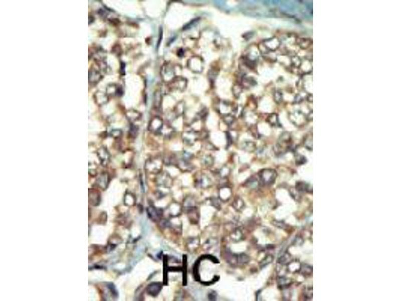 Image no. 1 for anti-Phosphatidylinositol 4-Kinase Type 2 beta (PI4K2B) antibody (ABIN544188)