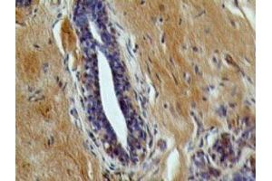 Immunohistochemistry (Paraffin-embedded Sections) (IHC (p)) image for anti-IL7R antibody (Interleukin 7 Receptor) (ABIN4325442)