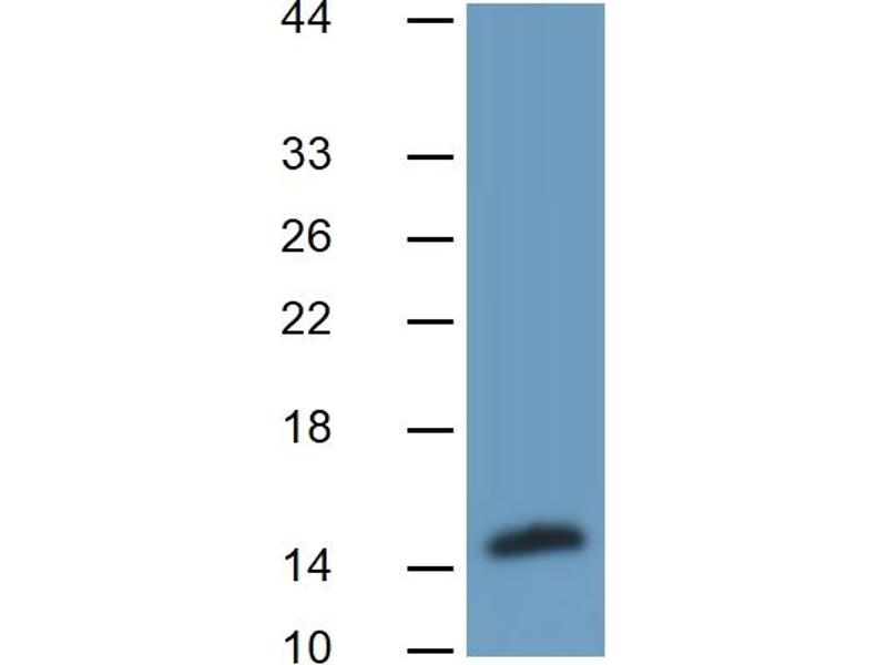 Fatty Acid Binding Protein 4, Adipocyte (FABP4) ELISA Kit (2)