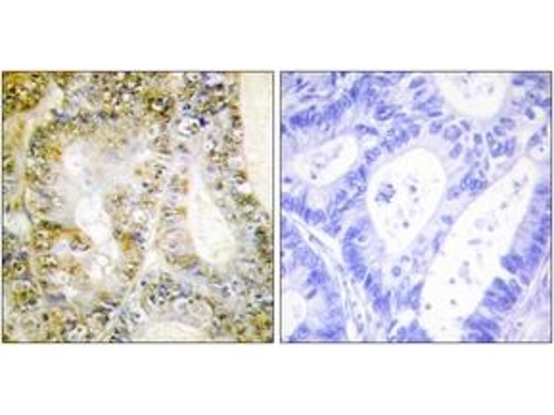 Immunohistochemistry (IHC) image for anti-Catenin (Cadherin-Associated Protein), beta 1, 88kDa (CTNNB1) (AA 626-675) antibody (ABIN1533705)