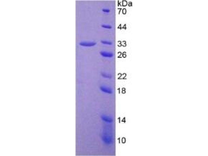 Prostaglandin-Endoperoxide Synthase 2 (Prostaglandin G/H Synthase and Cyclooxygenase) (PTGS2) ELISA Kit (2)