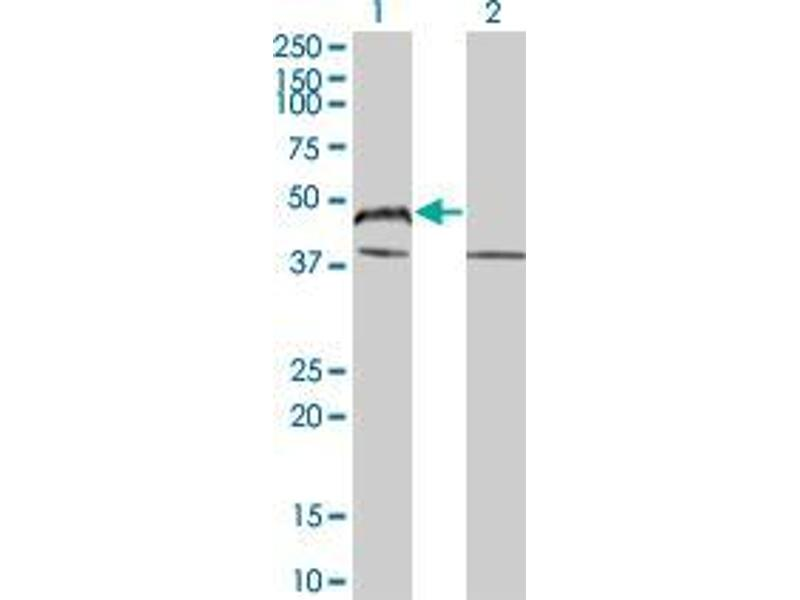 Immunohistochemistry (IHC) image for anti-BAG1 antibody (BCL2-Associated Athanogene) (AA 241-346) (ABIN394144)