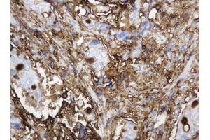 Image no. 11 for anti-Mucin 1, Cell Surface Associated (MUC1) antibody (ABIN1499597)
