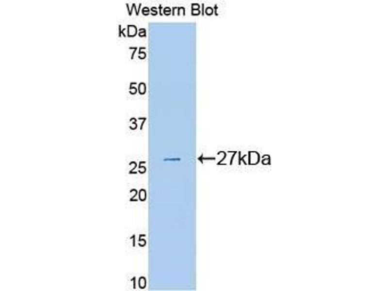 Western Blotting (WB) image for anti-Plasminogen (PLG) (AA 582-812) antibody (ABIN1078447)