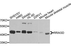 Image no. 1 for anti-Ras-Related GTP Binding D (RRAGD) antibody (ABIN6147254)