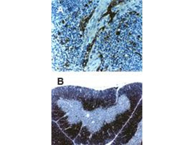 Image no. 3 for anti-TNF Receptor-Associated Factor 6 (TRAF6) antibody (ABIN537432)