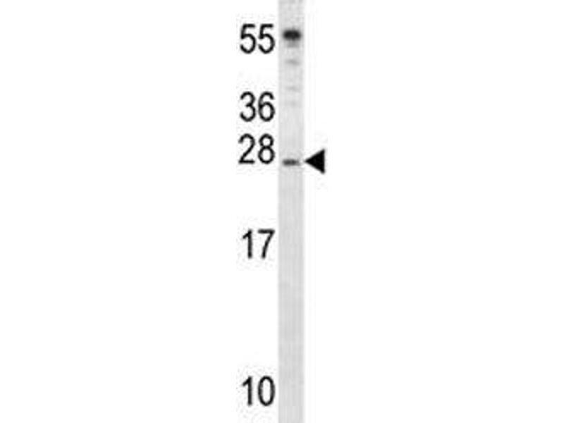 Western Blotting (WB) image for anti-Insulin-Like Growth Factor 2 (IGF2) (AA 39-68) antibody (ABIN3031346)