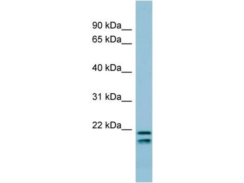 Western Blotting (WB) image for anti-Surfactant Protein C antibody (SFTPC) (N-Term) (ABIN502129)