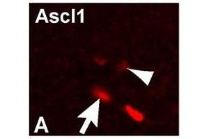 Image no. 1 for anti-Achaete-Scute Complex Homolog 1 (Drosophila) (ASCL1) antibody (ABIN933908)