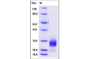 Image no. 1 for CD302 Molecule (CD302) (AA 1-156), (Extracellular Domain) protein (His tag) (ABIN2008194)