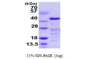 Image no. 1 for Vasodilator-Stimulated phosphoprotein (VASP) (AA 1-343) protein (His tag) (ABIN667900)
