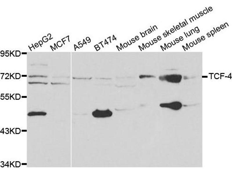 Western Blotting (WB) image for anti-TCF4 antibody (Transcription Factor 4) (ABIN1875039)