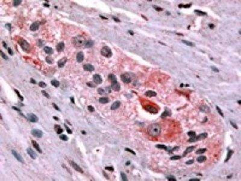 Immunohistochemistry (Paraffin-embedded Sections) (IHC (p)) image for anti-Prokineticin Receptor 1 (PROKR1) (C-Term) antibody (ABIN4347600)