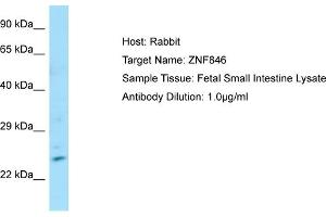 Image no. 1 for anti-Zinc Finger Protein 846 (ZNF846) (N-Term) antibody (ABIN2784192)