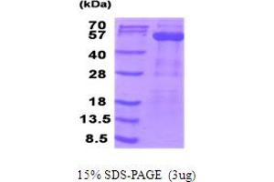 Image no. 1 for Pyruvate Dehydrogenase Complex, Component X (PDHX) (AA 54-501) protein (His tag) (ABIN6387533)