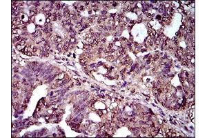 Immunohistochemistry (IHC) image for anti-Interleukin 2 Receptor, alpha (IL2RA) (AA 34-139) antibody (ABIN1724861)