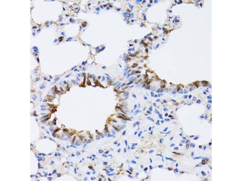 Image no. 4 for anti-ARD1 Homolog, N-Acetyltransferase (ARD1A) antibody (ABIN2561191)