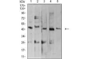 Western Blotting (WB) image for anti-ADP-Ribosylation Factor GTPase Activating Protein 1 (ARFGAP1) (AA 270-414) antibody (ABIN5682433)