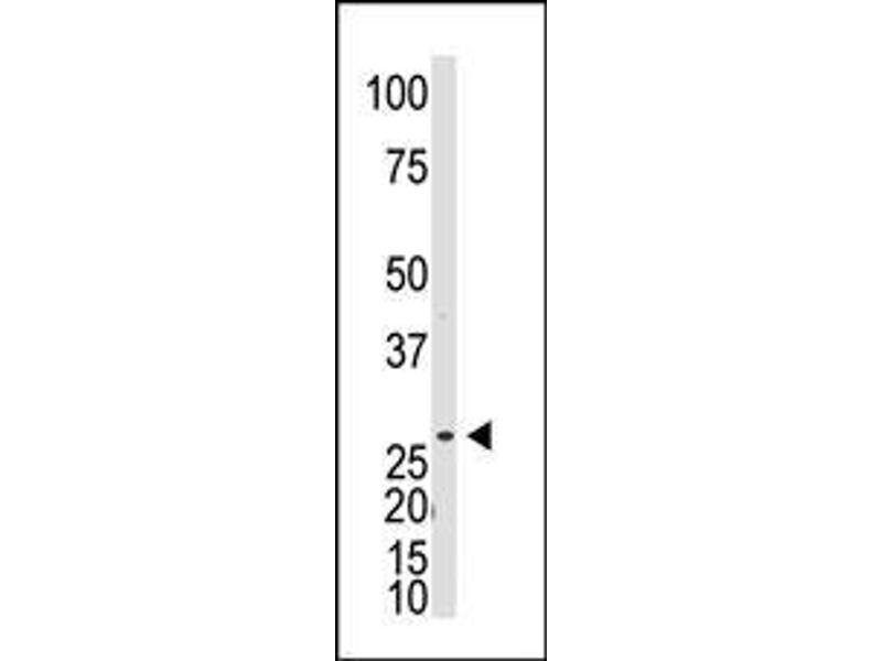 Western Blotting (WB) image for anti-DKK1 antibody (Dickkopf Homolog 1 (Xenopus Laevis)) (C-Term) (ABIN2160604)