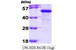 Image no. 1 for Suppression of Tumorigenicity 13 (Colon Carcinoma) (Hsp70 Interacting Protein) (ST13) (AA 1-369) protein (ABIN935011)