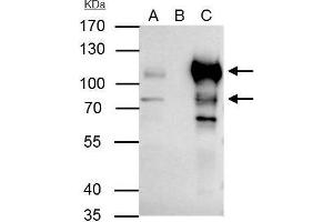 Image no. 5 for anti-B-Cell CLL/lymphoma 6 (BCL6) (Internal Region) antibody (ABIN2855012)