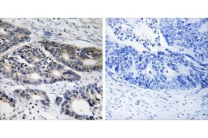 Image no. 1 for anti-Cytochrome P450, Family 2, Subfamily R, Polypeptide 1 (CYP2R1) antibody (ABIN1575993)